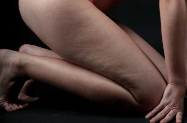 eliminer-la-cellulite