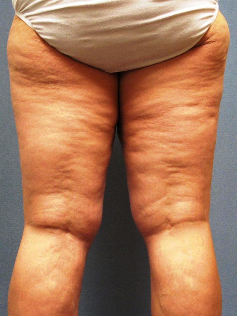 eliminer-la-cellulite-facilement